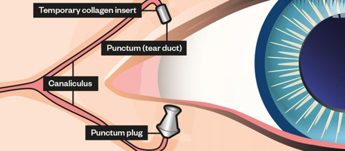 1074220_punctal-plug-eye-anatomy-pj-17