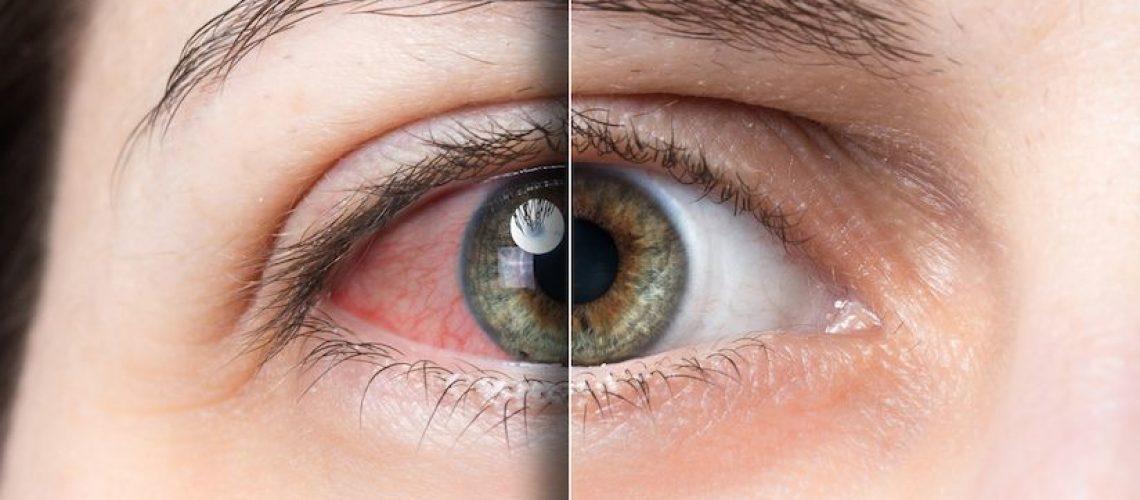 dry-eye-dgrm